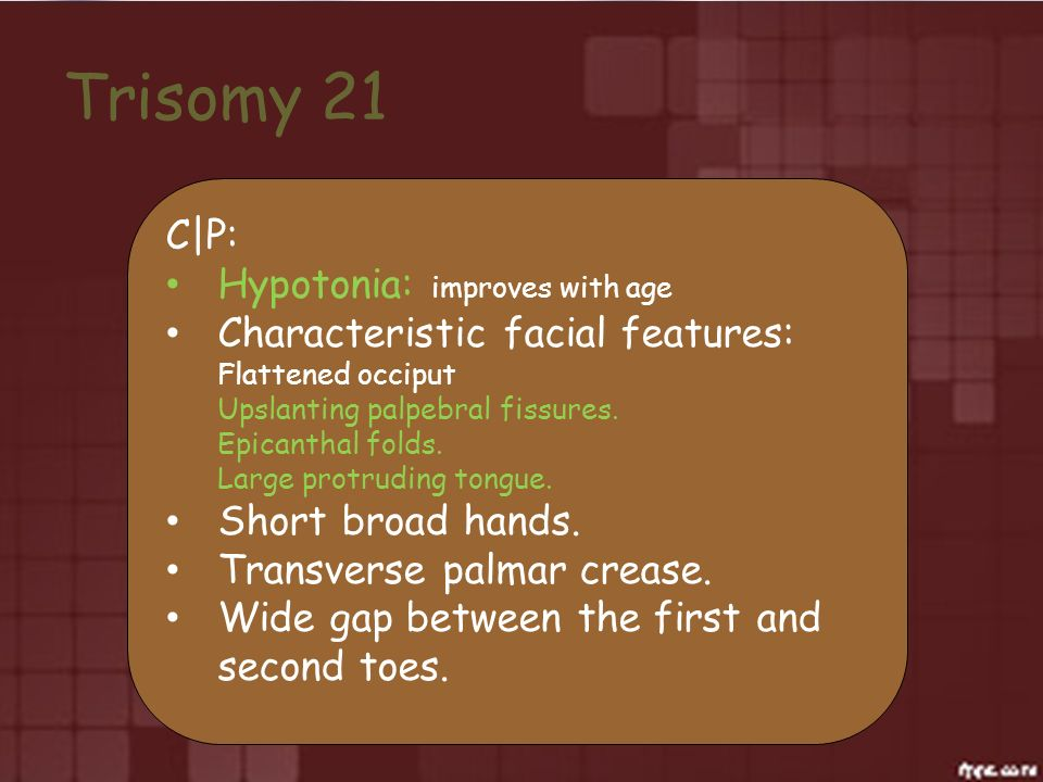 Trisomy 21 C|P: Hypotonia: improves with age