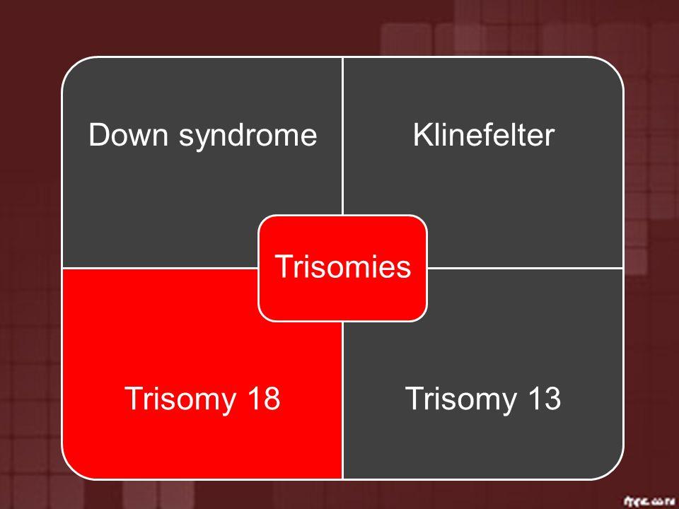 Trisomies Down syndrome Klinefelter Trisomy 18 Trisomy 13
