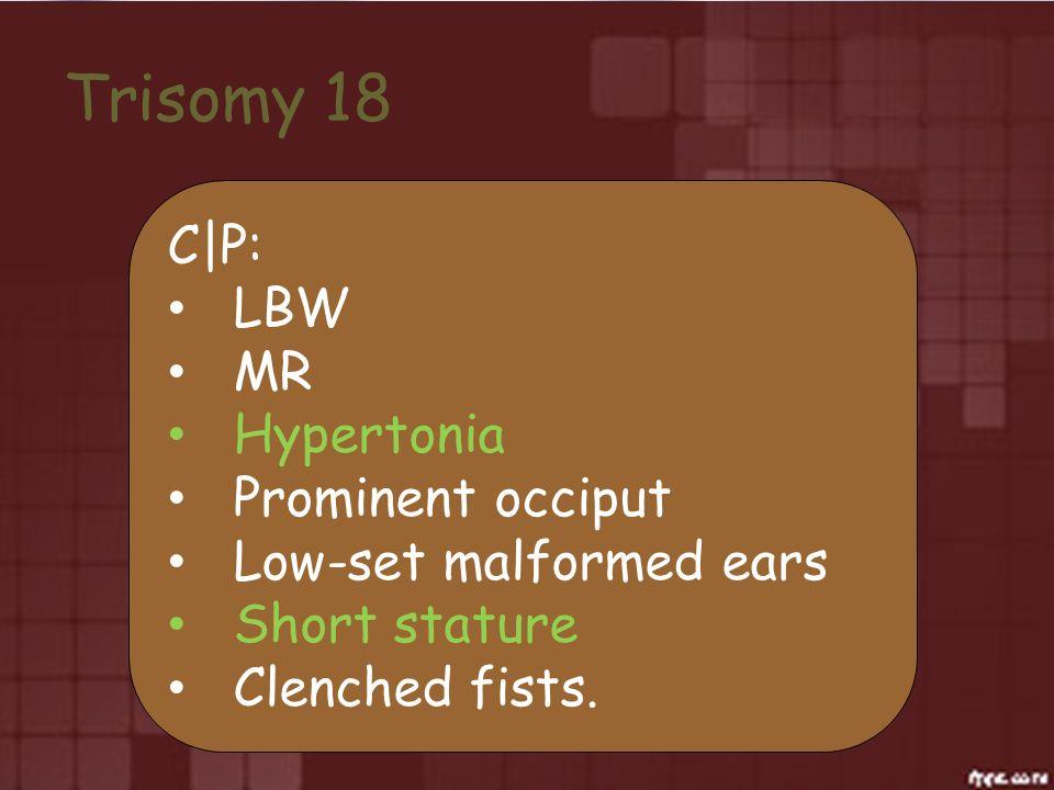Trisomy 18 C|P: LBW MR Hypertonia Prominent occiput