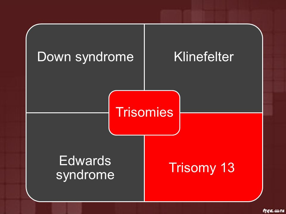 Trisomies Down syndrome Klinefelter Edwards syndrome Trisomy 13