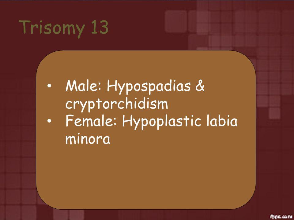 Trisomy 13 Male: Hypospadias & cryptorchidism