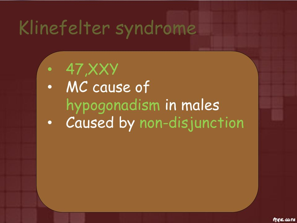 Klinefelter syndrome 47,XXY MC cause of hypogonadism in males