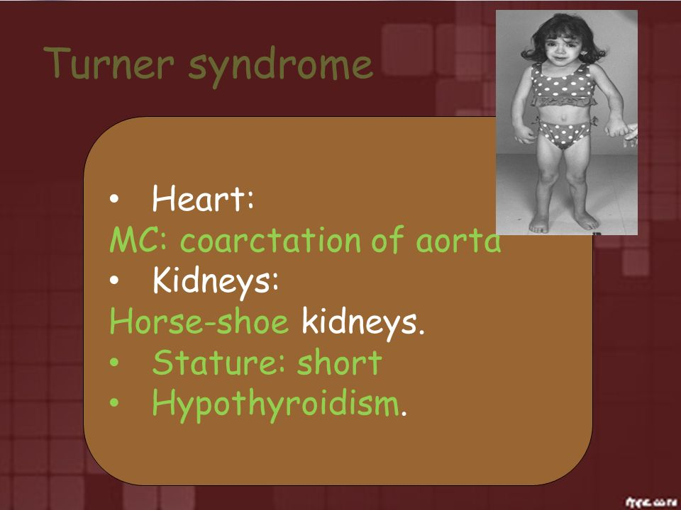 Turner syndrome Heart: MC: coarctation of aorta Kidneys: