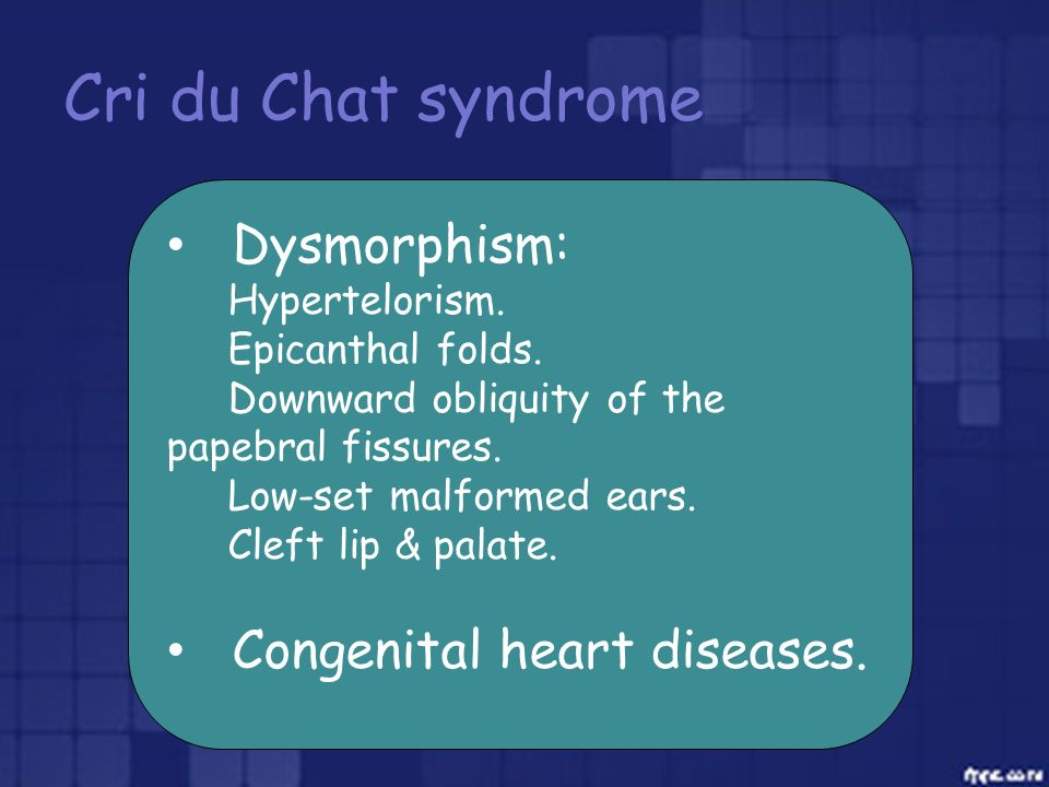 Cri du Chat syndrome Dysmorphism: Congenital heart diseases.