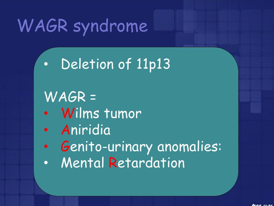 WAGR syndrome Deletion of 11p13 WAGR = Wilms tumor Aniridia
