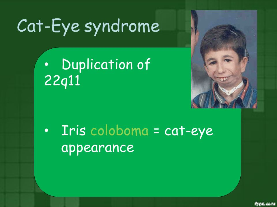 Cat-Eye syndrome Duplication of 22q11