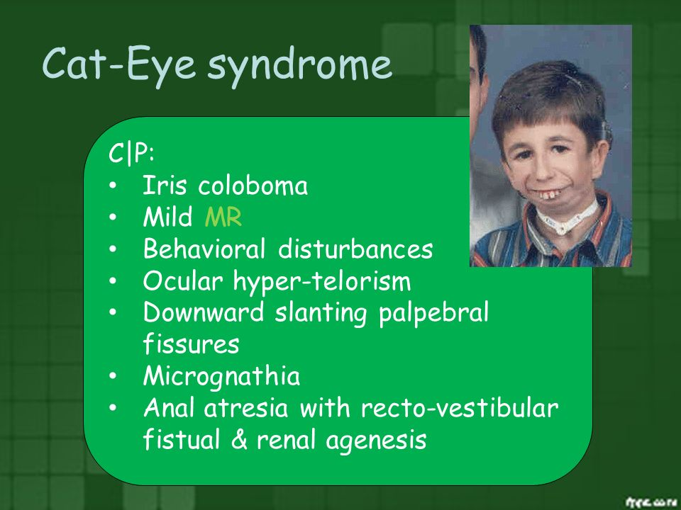 Cat-Eye syndrome C|P: Iris coloboma Mild MR Behavioral disturbances