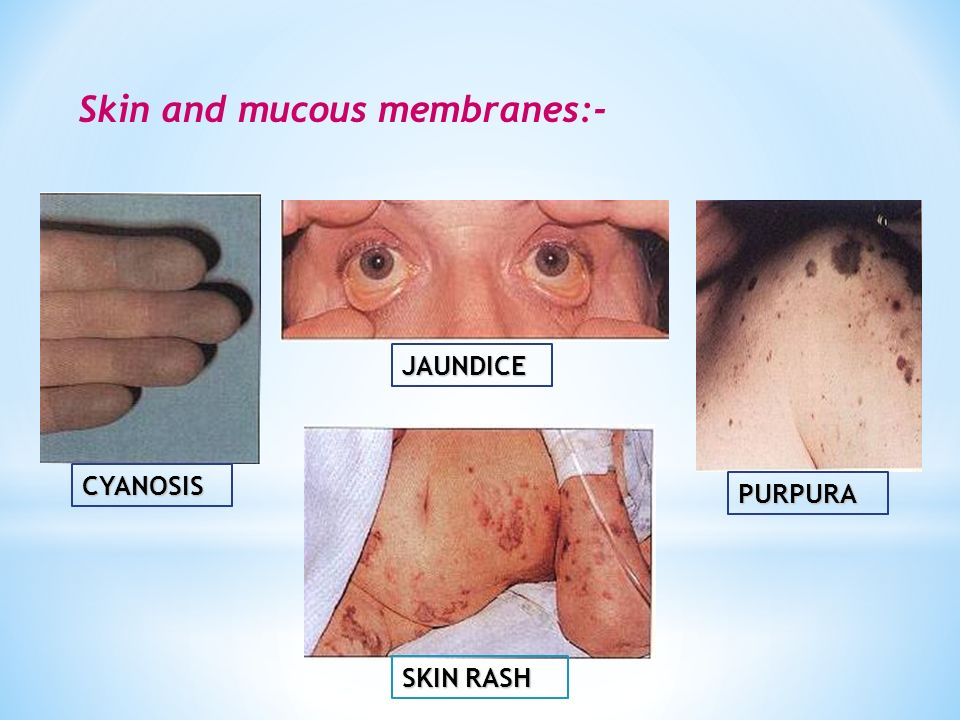 Skin and mucous membranes:-