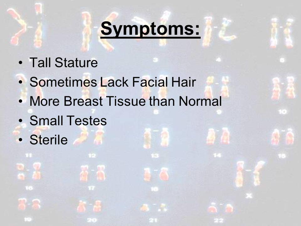 Symptoms: Tall Stature Sometimes Lack Facial Hair