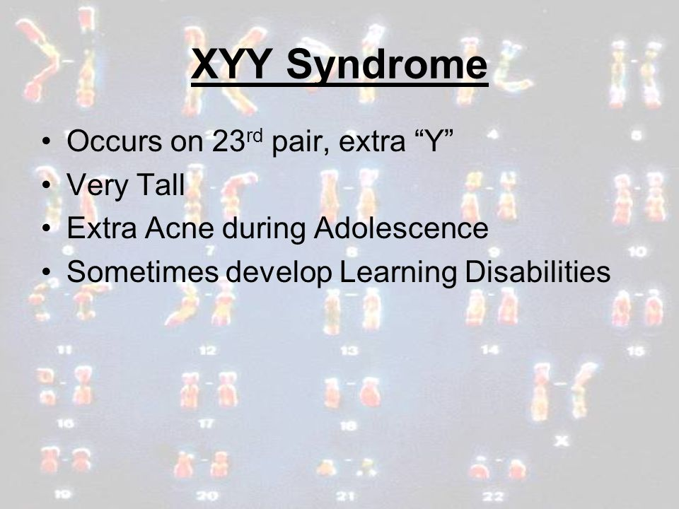 XYY Syndrome Occurs on 23rd pair, extra Y Very Tall
