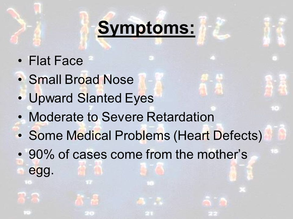 Symptoms: Flat Face Small Broad Nose Upward Slanted Eyes