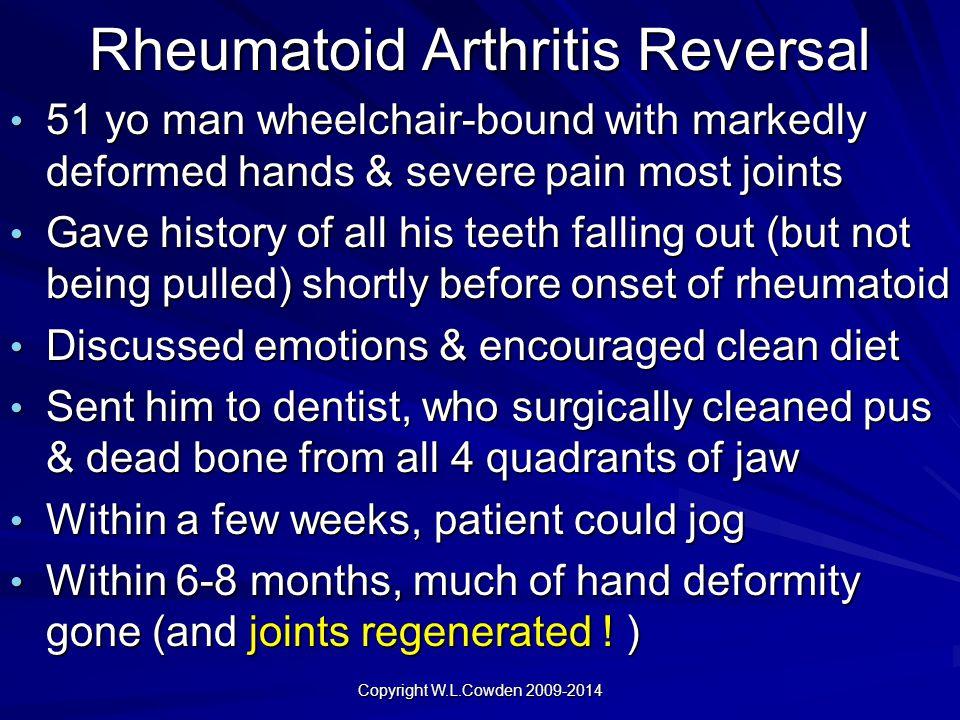 Rheumatoid Arthritis Reversal