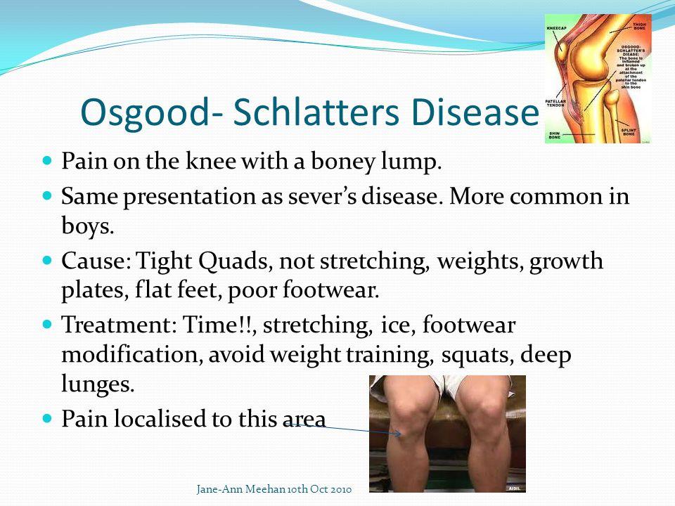 Osgood- Schlatters Disease