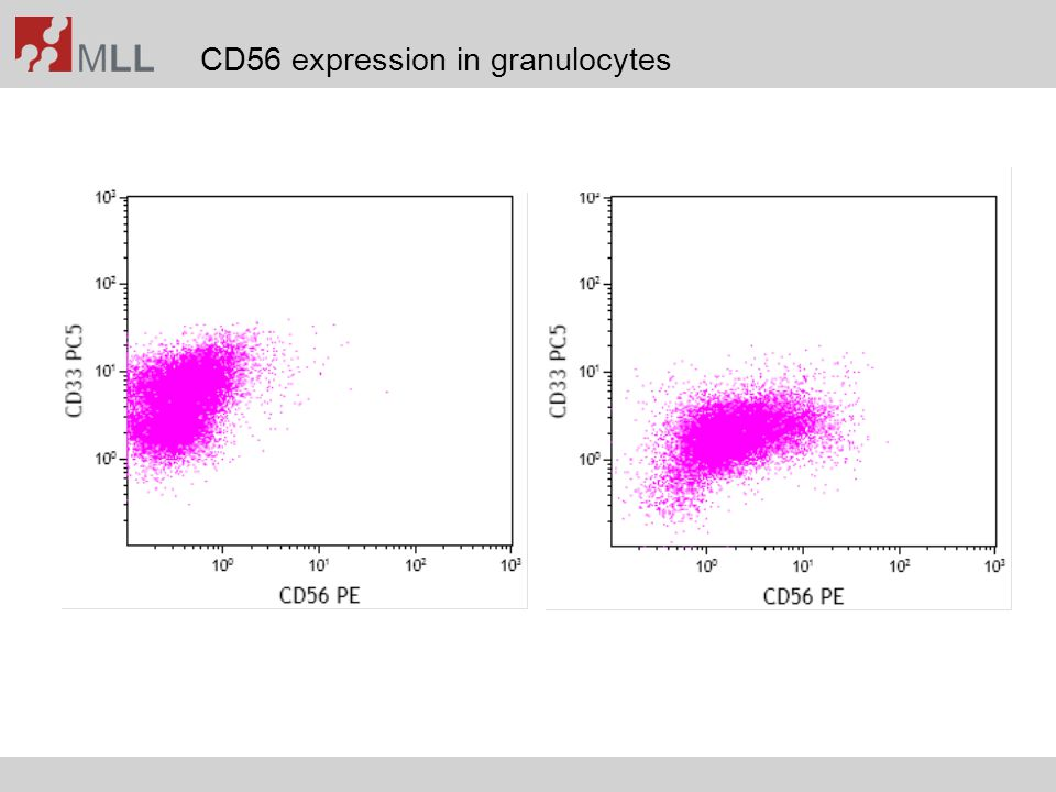 CD56 expression in granulocytes