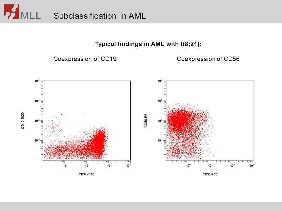 Typical findings in AML with t(8;21):