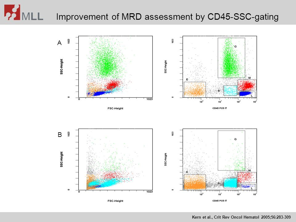 Improvement of MRD assessment by CD45-SSC-gating