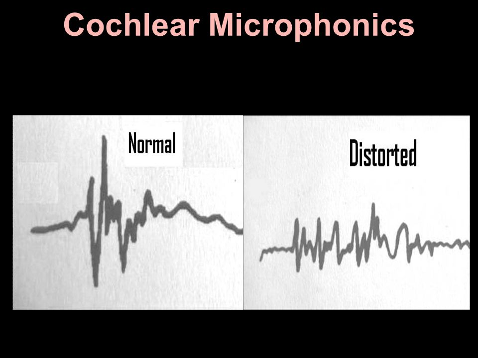 Cochlear Microphonics