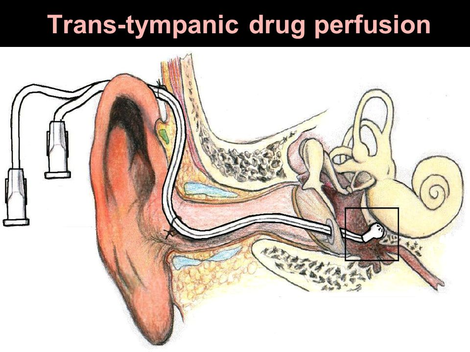 Trans-tympanic drug perfusion