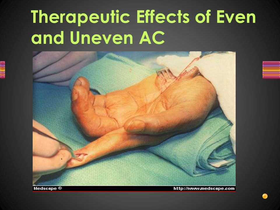 Therapeutic Effects of Even and Uneven AC