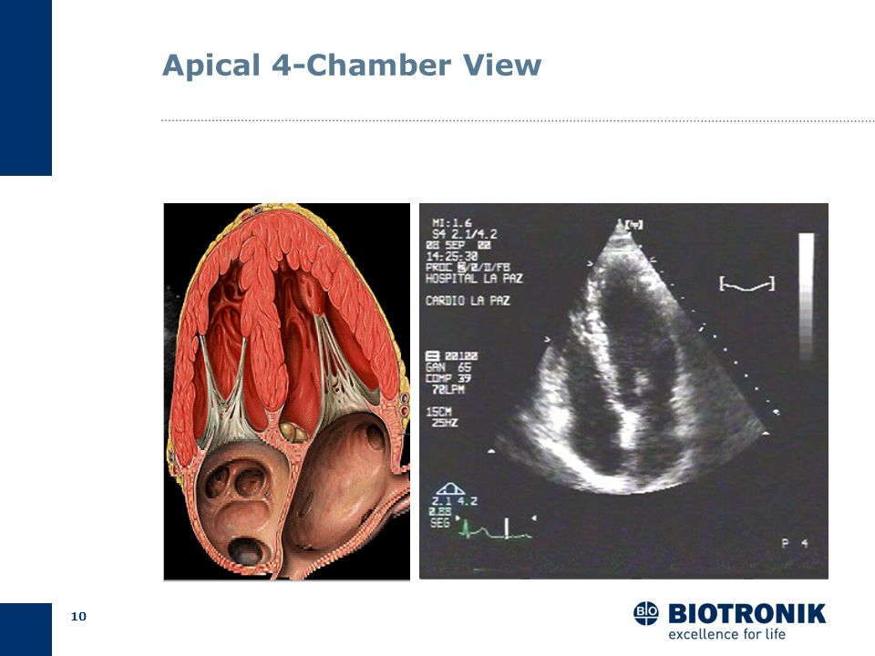 Apical 4-Chamber View
