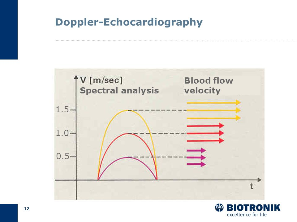 Doppler-Echocardiography