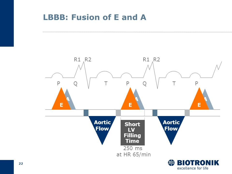 LBBB: Fusion of E and A R1 R2 R1 R2 P Q T P Q T P A A A E E E Aortic