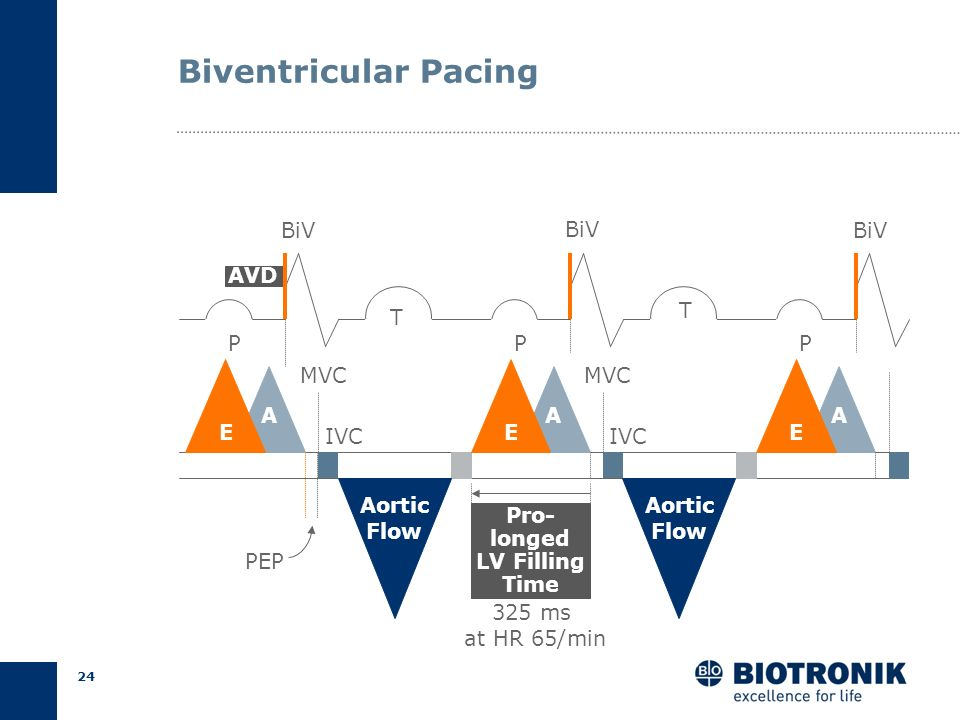 Biventricular Pacing BiV BiV BiV AVD T T P P P MVC MVC A A A E IVC E