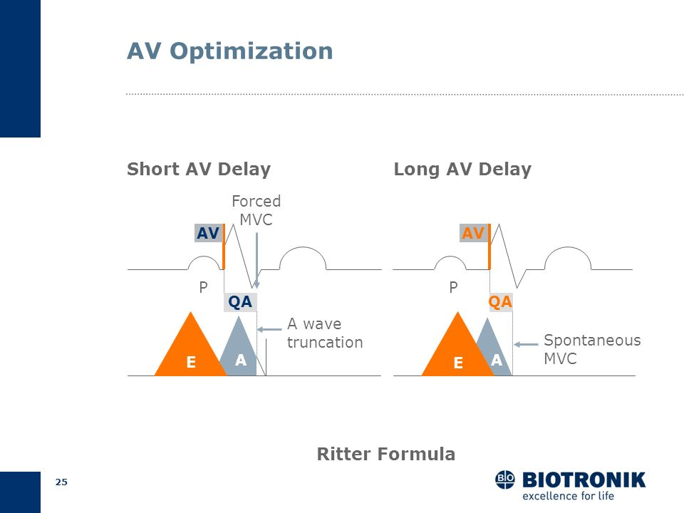 AV Optimization Short AV Delay Long AV Delay Ritter Formula Forced MVC