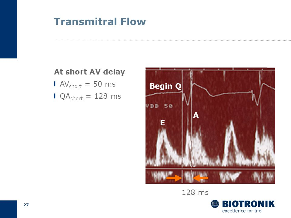 Transmitral Flow At short AV delay AVshort = 50 ms QAshort = 128 ms