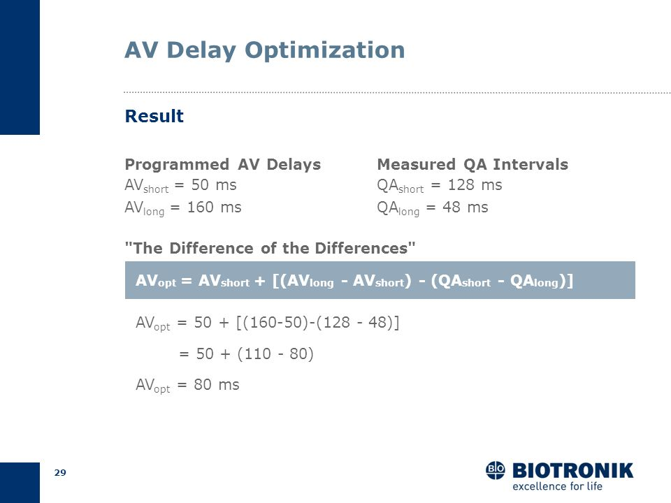 AV Delay Optimization Result Programmed AV Delays AVshort = 50 ms