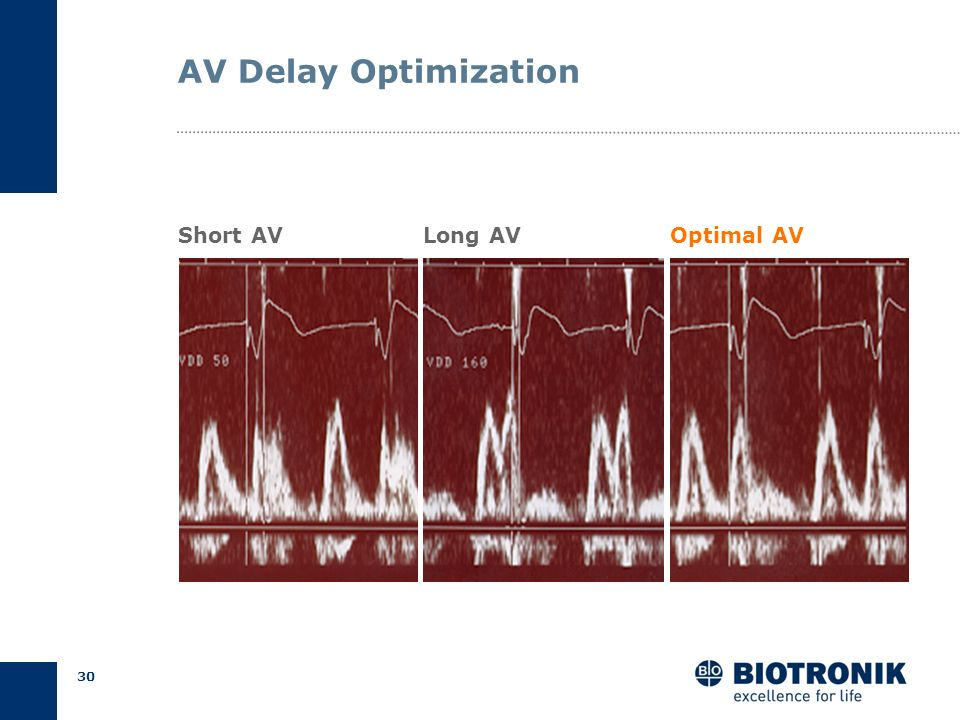 AV Delay Optimization Short AV Long AV Optimal AV