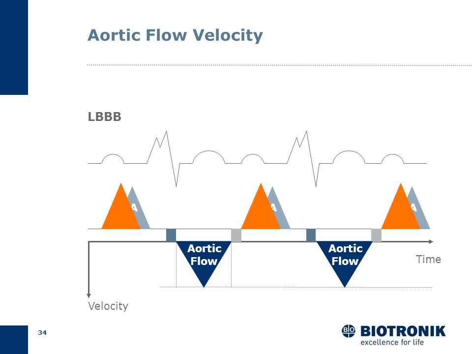 Aortic Flow Velocity LBBB A A A Aortic Flow Aortic Flow Time Velocity