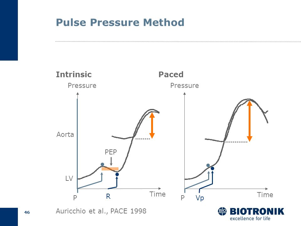 Pulse Pressure Method Intrinsic Paced Pressure P Vp Time Pressure P R