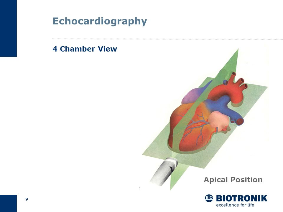 Echocardiography 4 Chamber View Apical Position