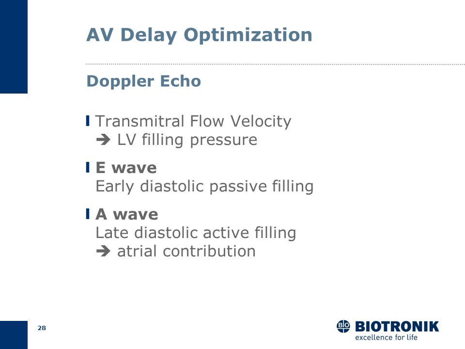 AV Delay Optimization Doppler Echo