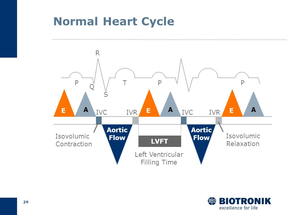 Normal Heart Cycle R P T P P Q S A A A E IVC IVR E IVC IVR E Aortic