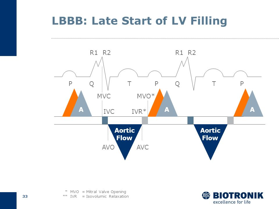 LBBB: Late Start of LV Filling