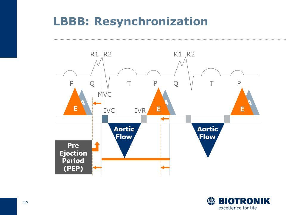 LBBB: Resynchronization