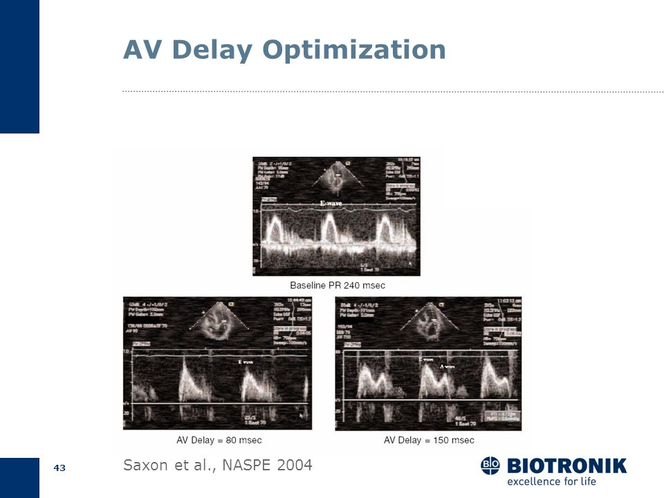 AV Delay Optimization Saxon et al., NASPE 2004