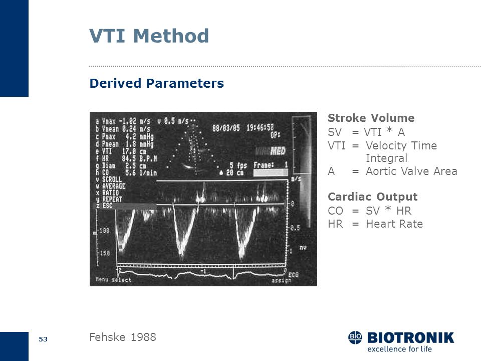 VTI Method Derived Parameters Stroke Volume SV = VTI * A
