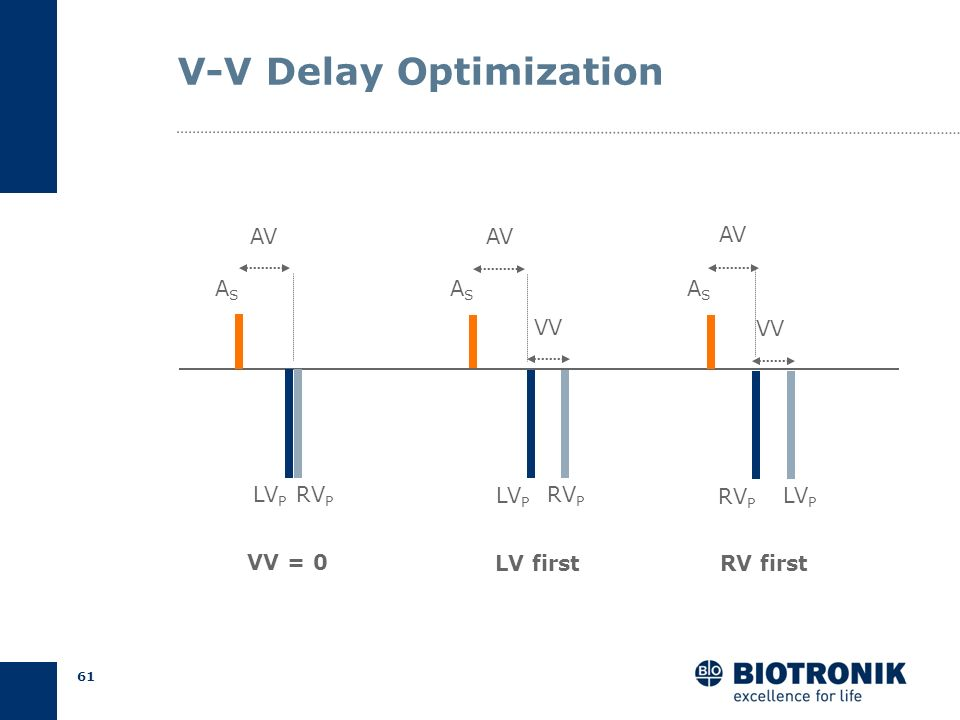 V-V Delay Optimization