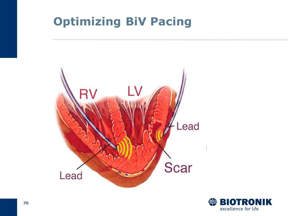 Optimizing BiV Pacing