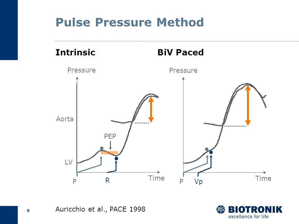 Pulse Pressure Method Intrinsic BiV Paced Pressure P Vp Time Pressure