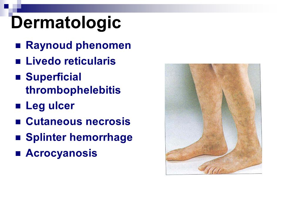 Dermatologic Raynoud phenomen Livedo reticularis