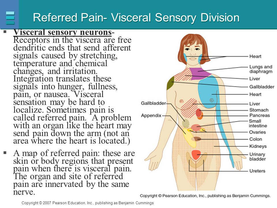 Referred Pain- Visceral Sensory Division