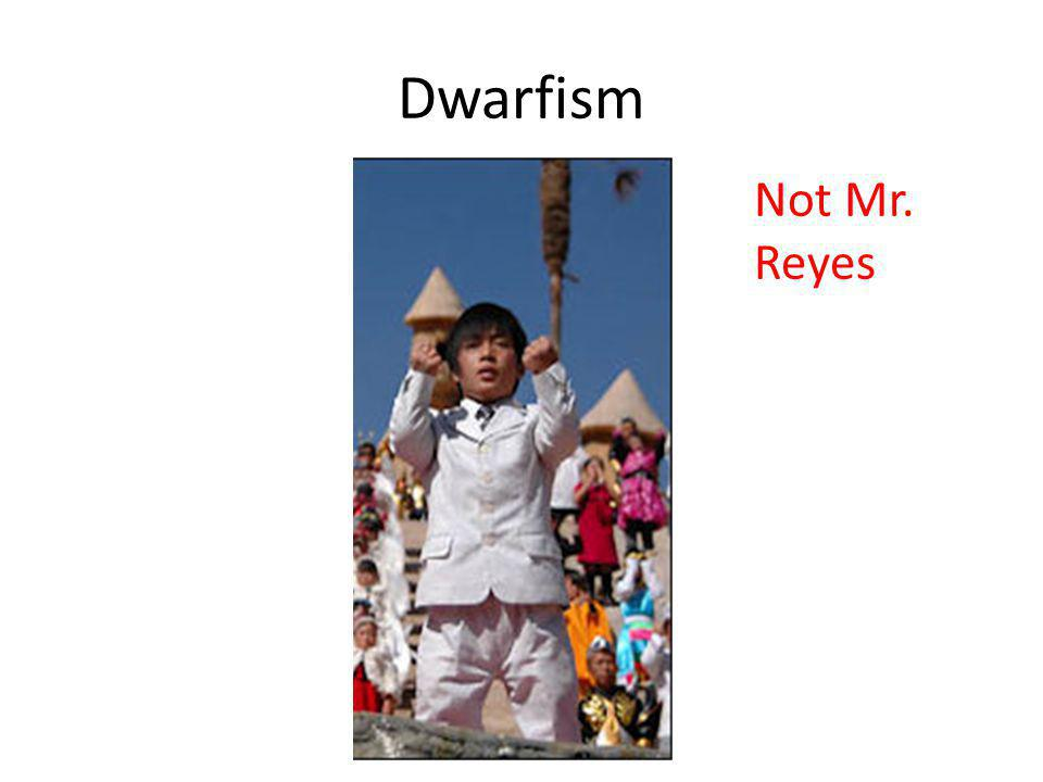 Dwarfism Not Mr. Reyes
