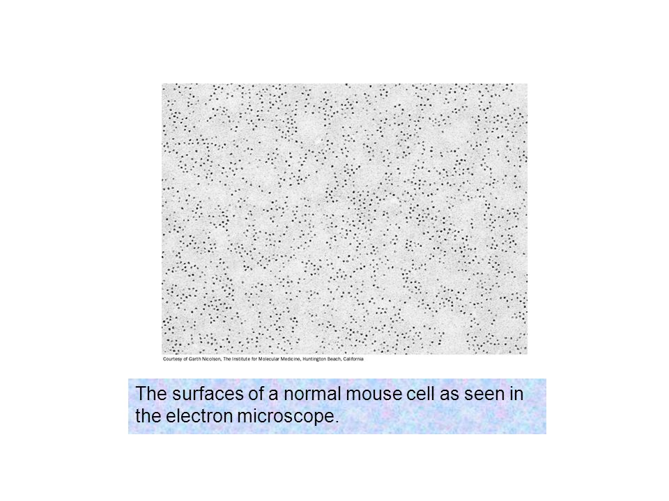 The surfaces of a normal mouse cell as seen in the electron microscope.