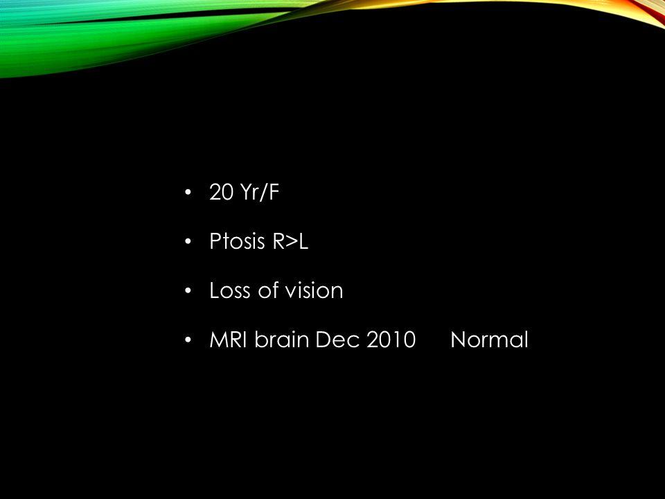 20 Yr/F Ptosis R>L Loss of vision MRI brain Dec 2010 Normal