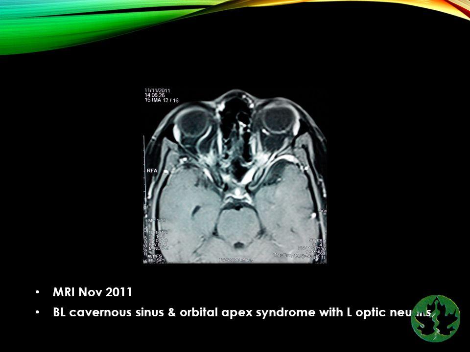 MRI Nov 2011 BL cavernous sinus & orbital apex syndrome with L optic neuritis