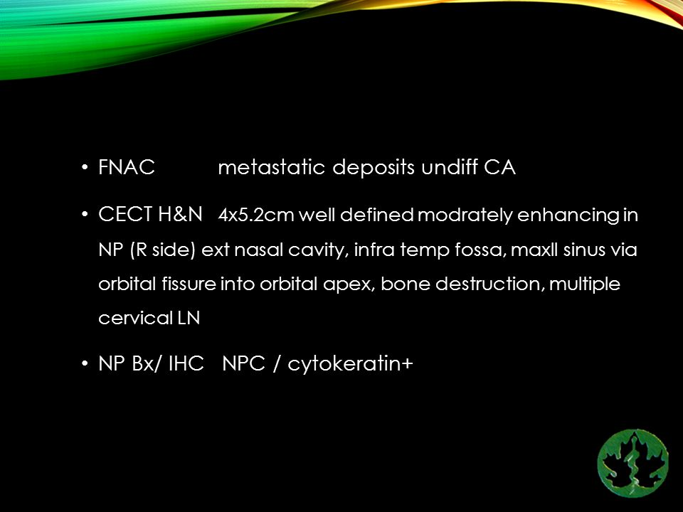 FNAC metastatic deposits undiff CA